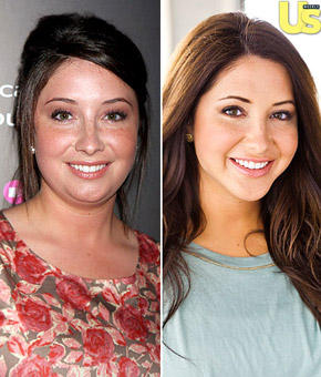 Bristol Palin Talks About Going Under The Knife &#8211; Before &#038; After Pics