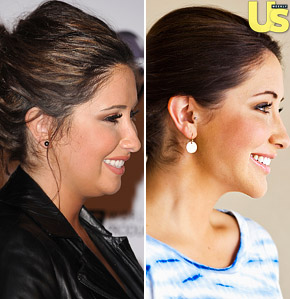 Bristol Palin - Surgery - Before & After Photos