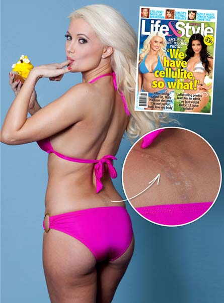 Holly Madison Lasered Off Her Playboy Tattoo