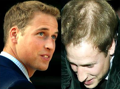 Rogaine Wants to Help Prince William Look Good For His Wedding