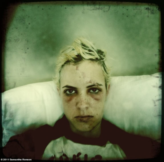 Samantha Ronson BMX Wreck Photo