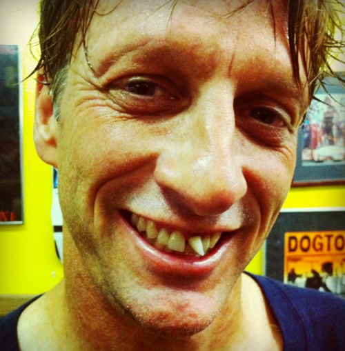 PHOTOS: Tony Hawk Wrecks, Loses A Tooth