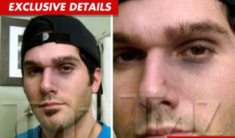 PHOTOS: 'Bachelor Pad 2' Justin Rego 'Rated-R' Gets Busted Nose From Cast Mate!