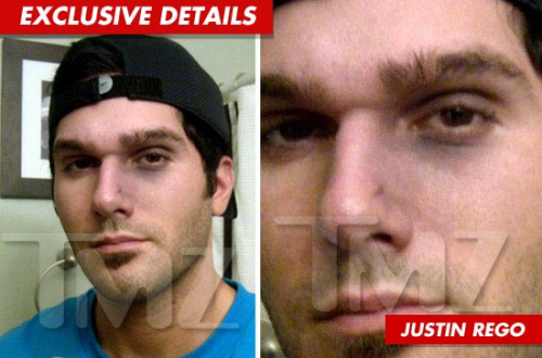 PHOTOS: 'Bachelor Pad 2′ Justin Rego 'Rated-R' Gets Busted Nose From Cast Mate!