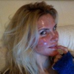 Brandi Glanville Plastic Surgery Laser Peel Photo Revealed HERE!