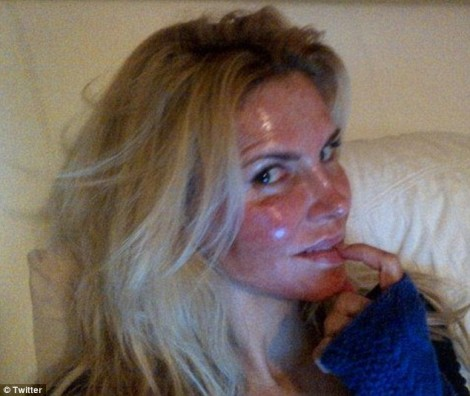 Brandi Glanville Plastic Surgery Laser Peel Photo Revealed HERE!
