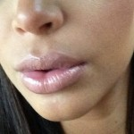 Kim Kardashian's Lips Are Out Of Control, According To Her