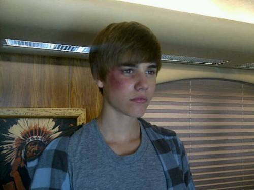 OUCH! Justin Bieber Has a HUGE Black Eye!