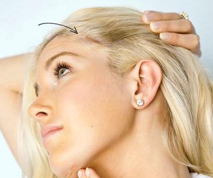 Heidi Montag Surgery Scars
