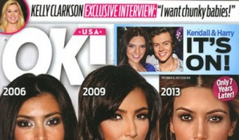 Kim Kardashian And Other Celebrities Obsessed With Plastic Surgery (PHOTOS)